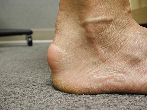 Achilles Tendonitis On Foot